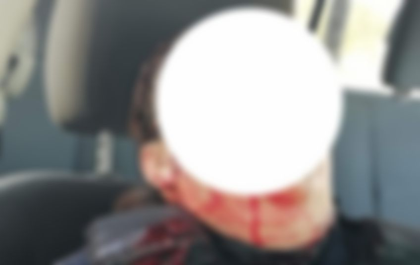 Asesinato de policías en Quiletla sin avance, reconoce Procurador