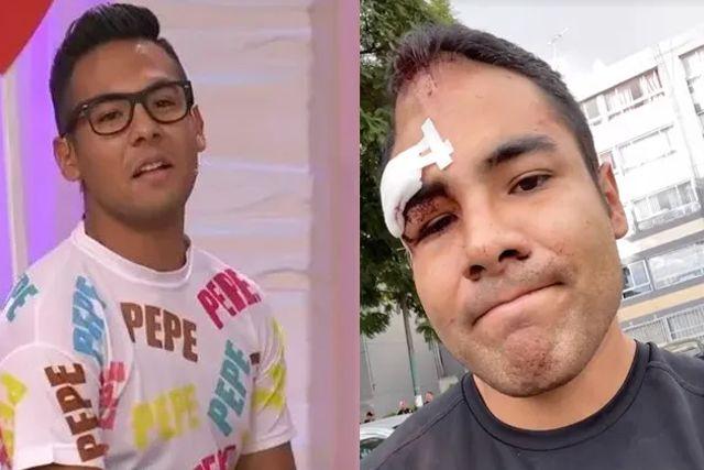 Vecinos golpean brutalmente a Pepe Pepe de Enamorándonos