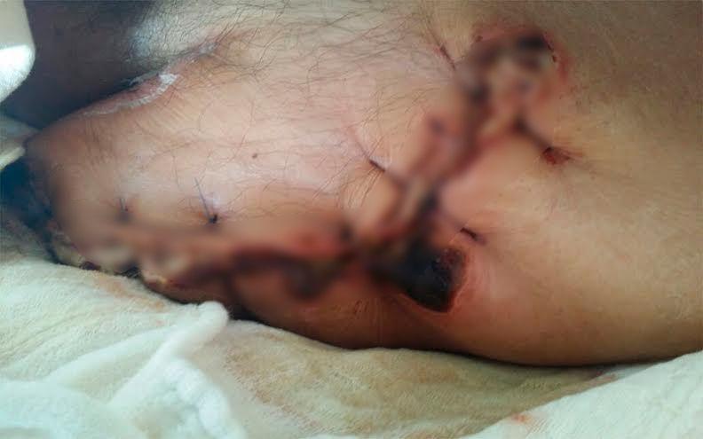 Denuncian otro caso de presunta negligencia médica en SESA