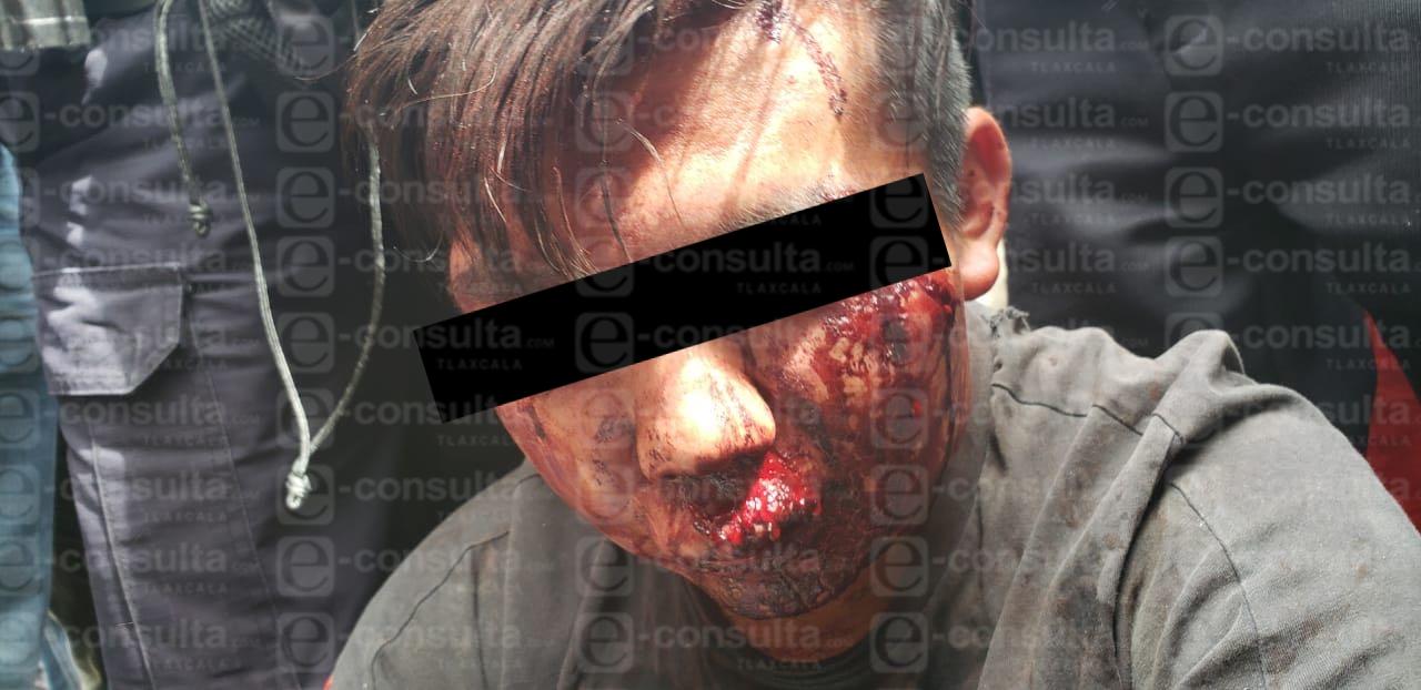Delincuente atrapado y golpeado por pobladores de SPM murió
