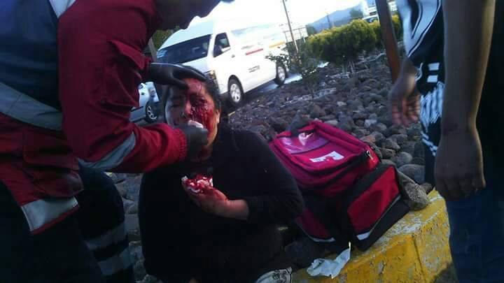 Aparatoso accidente deja cuatro lesionados en Huamantla