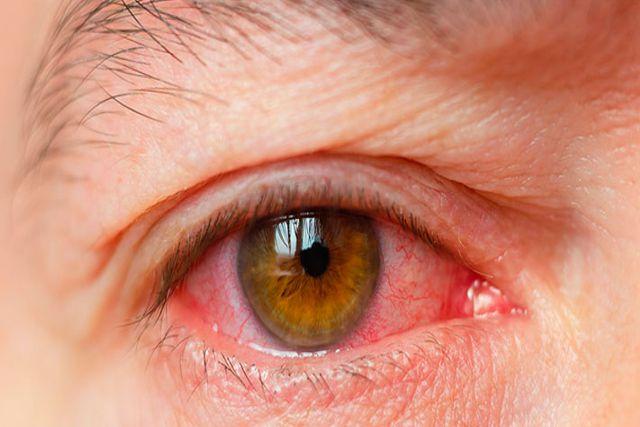 Pacientes graves de Covid presentan anomalías en sus ojos