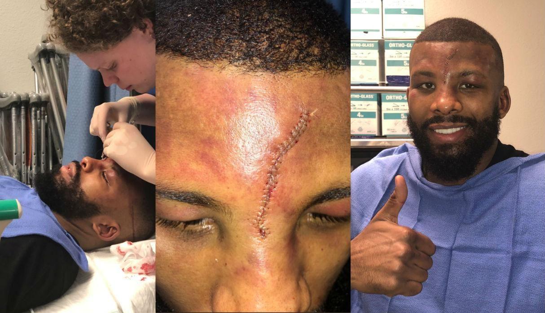 Oponente de Pacquiao sufre corte en la cara previa a su pelea