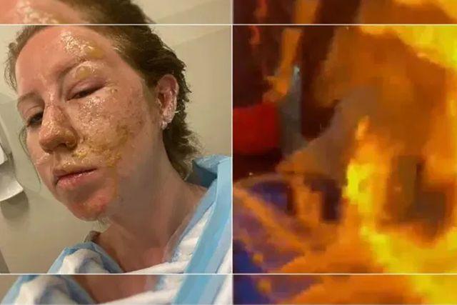 Mesero quema el rostro  de una mujer al flamear su bebida en Cancún