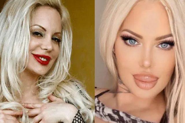 ¡No puede sonreír! Sabrina Sabrok es operada de los labios y queda desfigurada