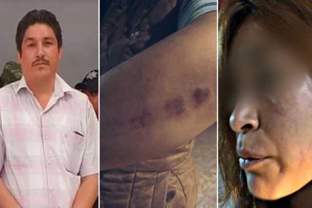 Picapiedra rechaza violencia femenina y su regidor casi mata a su cuñada