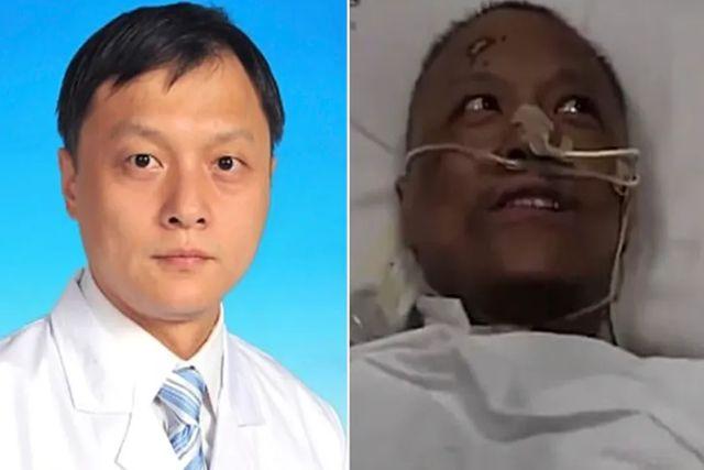 Dos médicos chinos sobrevivientes al covid-19 sufren cambios de color en su piel