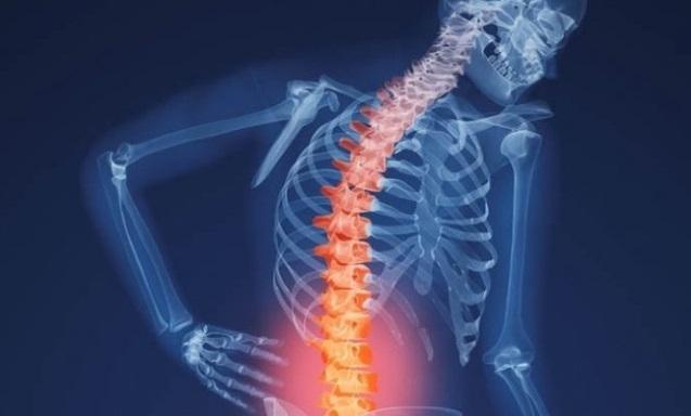 IMSS Tlaxcala emite recomendaciones para evitar lesiones de columna