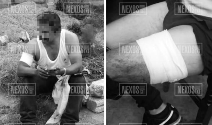 Asaltantes atacan a balazos a dos hombres, en Xicohtzinco y Papalotla