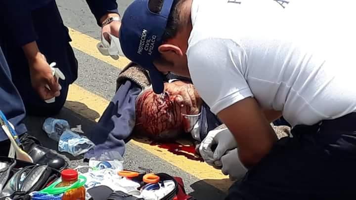 Atropellan a hombre de 80 años sobre la carretera a Apizaco