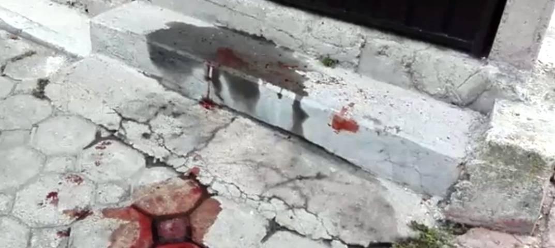 Balean a joven en Xalcatzingo se presume intento de secuestro