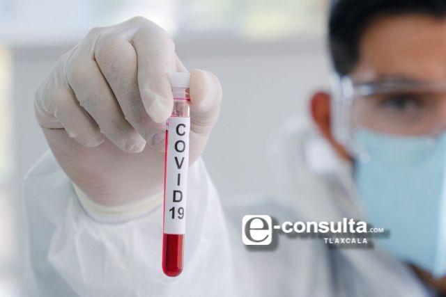 Muere autoridad de Tlaltelulco, se presume coronavirus