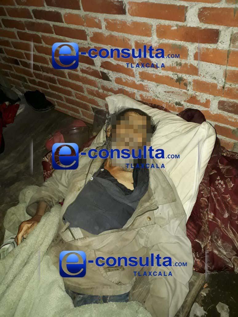 Muere indigente por bronco aspirar en Tetla