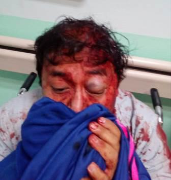 Familiares del alcalde de Tocatlán agreden a sobrino del ex alcalde
