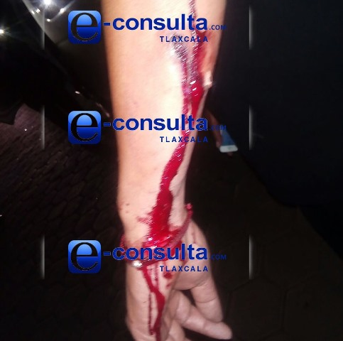 Siguen los robos con violencia; hieren a chofer en Tzompantepec