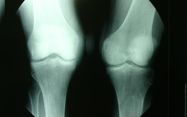 Seis de cada 10 adultos tiene mala calidad ósea: IMSS