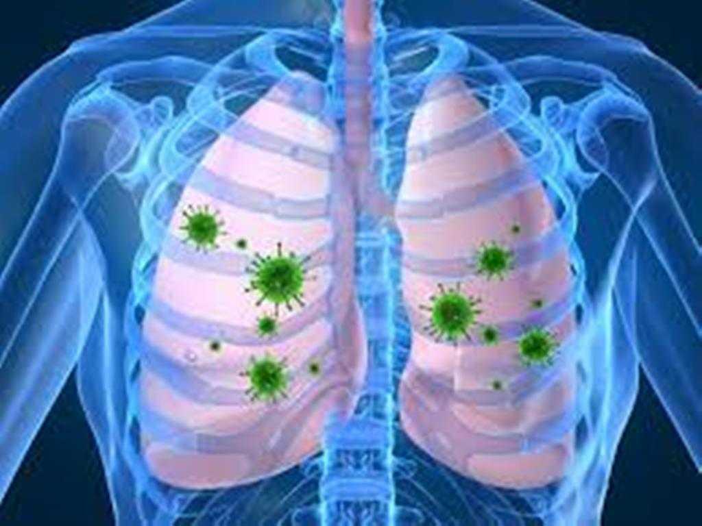 Se  recomienda proteger a niños y adultos mayores contra neumococo