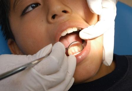 Exhorta IMSS a cuidar higiene bucal para evitar enfermedades