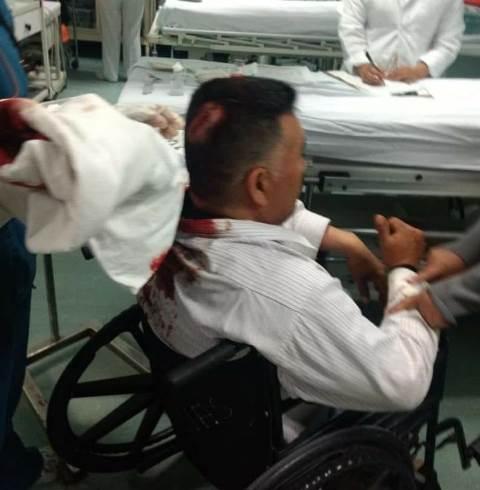 Tras pelea campal dejan mal herido al alcalde de Tocatlán