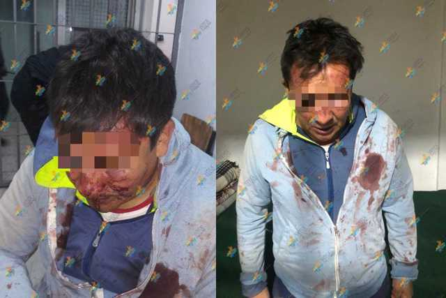 Detienen en Tetla a un hombre por realizar actos de alusión sexual en vía pública