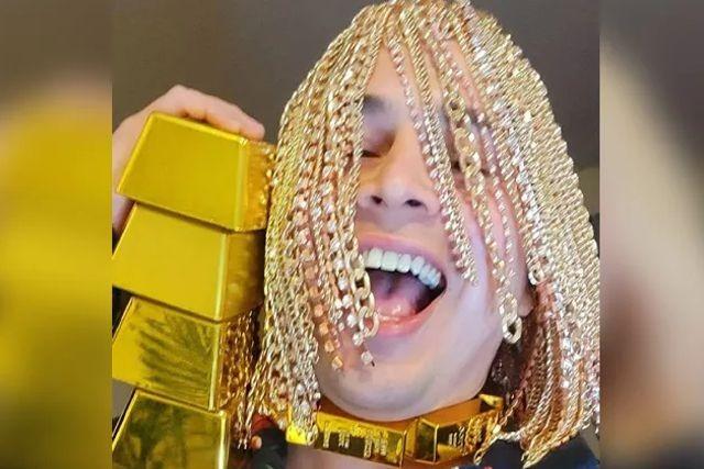 Rapero se implanta en la cabeza cadenas de oro